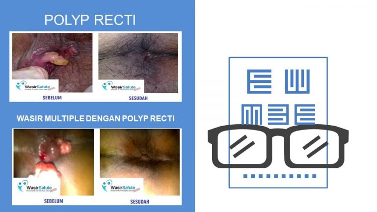img-slide-presentation-sebelum-sesudah-wasir (16)