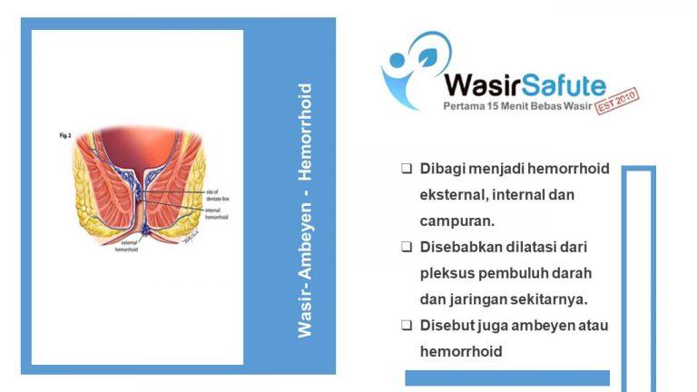 img-slide-presentation-update-artikel-wasir (2)